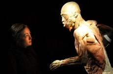 GALLERY: A quick look inside the controversial Human Body exhibition