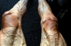 This is what 16 gruelling stages of the Tour de France will do to your legs