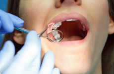 There has been a big drop in people getting HSE-funded dental treatments