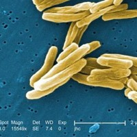HSE screens 336 people after TB outbreak in Cork school