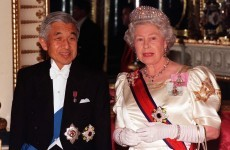 Japan's emperor to have heart bypass surgery