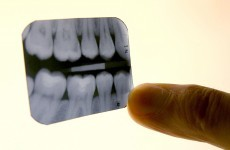 Dental sector could face loss of up to 1,000 jobs this year