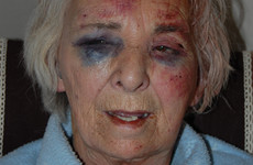 Reward offered after 'vicious' assault on pensioner in London