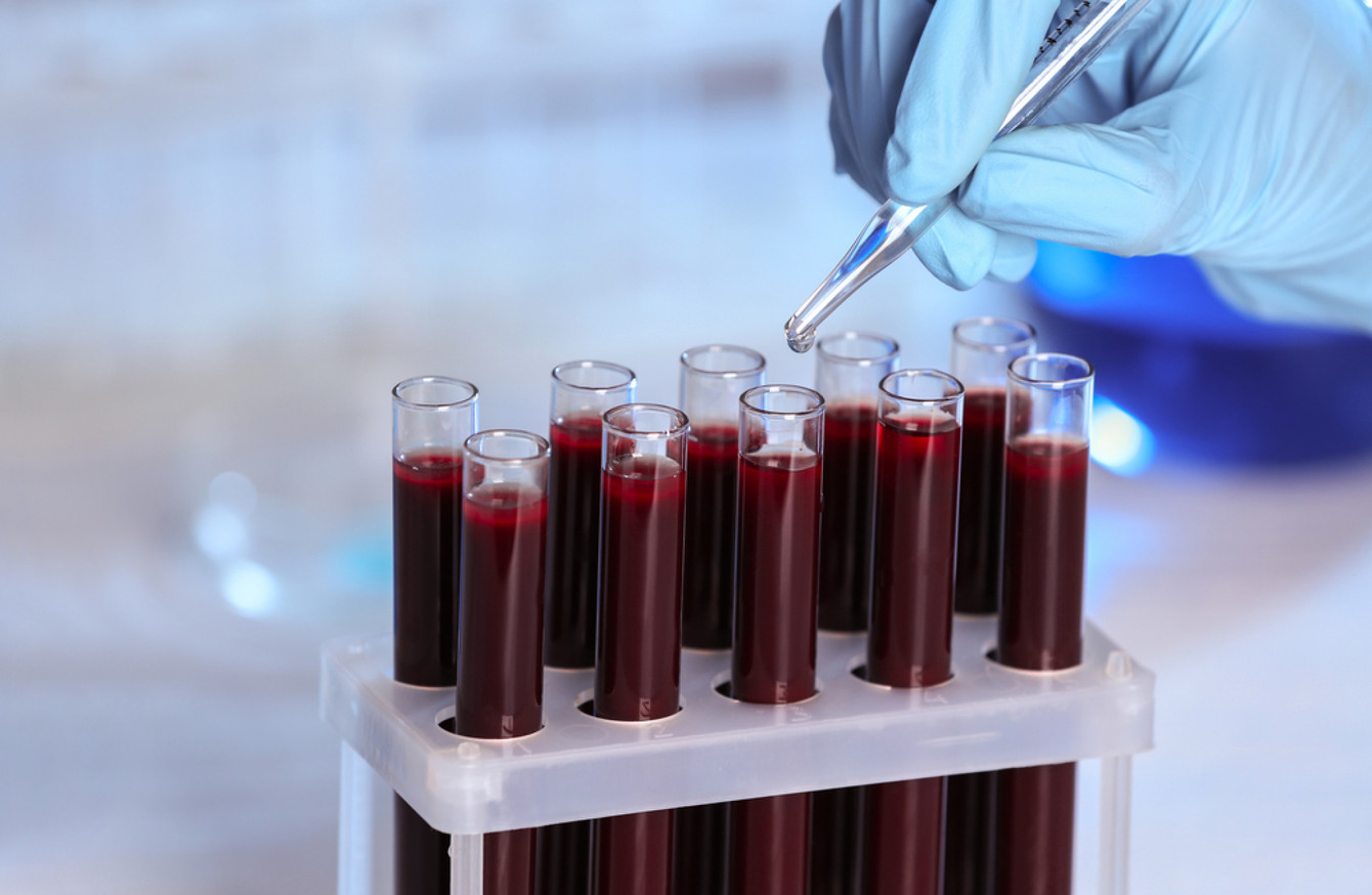 A patient in Ireland has contracted Hepatitis B from a blood transfusion
