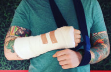 Ed Sheeran has broken his arm after being knocked down in London