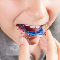 Over 200 children with serious teeth problems have waited over 4 years for treatment