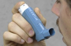TCD research could lead to new treatment for asthma, dermatitis