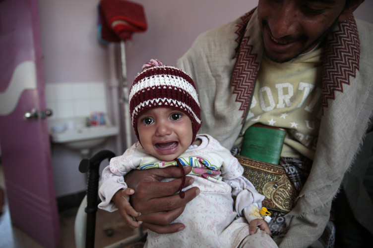 A man carries his malnourished girl at a therapeutic feeding centre in a hospital in Sanaa, Yemen.