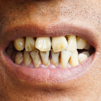 Irish research links bacteria to pre-oral cancer growth