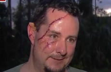 Man 'happy to be alive' after bear attacked him while he was letting dog out of house