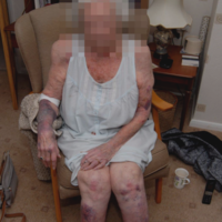 UK police seek 'heartless' attacker who pulled a great-grandmother from her bed in 'brutal' robbery