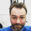 Brian McFadden got a hair transplant and shared all the gory details on Instagram