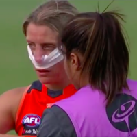 Cora Staunton soldiers on despite suffering nasty blow to the nose in Aussie Rules win