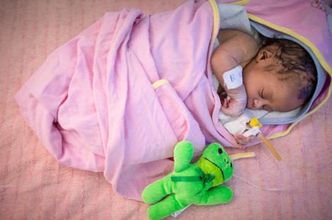A baby at a Neonatal Intensive Care Unit in Ethiopia