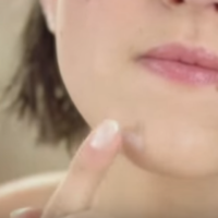 Beauty Q: Do you use Sudocrem on your spots?