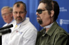 VIDEO: Full face transplant man, one year on