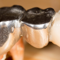 Dentists will stop using metal fillings that have been used in teeth for 150 years