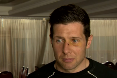 Sean Cavanagh is still recovering from last weekend's incident.