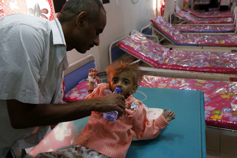 A sick child and her father are seen at a hospital in Hodeidah city, Yemen this week.