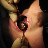 Screening uncovered 12 cases of mouth cancer last year