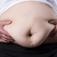Trinity College scientists discover major link between obesity and how the body fights cancer