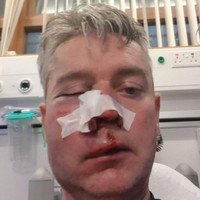 Referee who was assaulted at football game says he forgives those who attacked him
