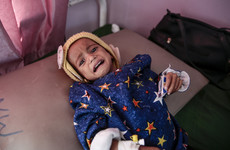 'Some are too frail to cry': Up to 85,000 children under five have died since start of 2015 Yemen war