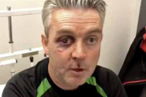 Sweeney after the assault.