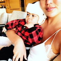 Here's why Chrissy Teigen's son Miles will be wearing a helmet for the next while