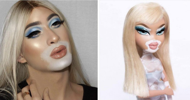 Eh, some MUAs are pretending to have vitiligo for the Bratz Challenge