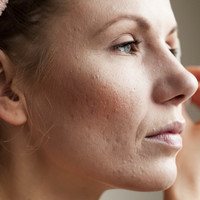 Rosacea: The do's and dont's of caring for the common skin condition