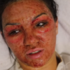 Love Island's Alexandra shared the aftermath of her CO2 peel, and it was harrowing