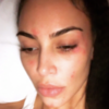 Suffering with psoriasis: What to know about the skin condition Kim Kardashian lives with