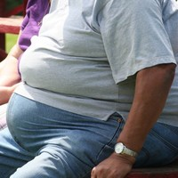 Developing world facing 'obesity epidemic', says major report