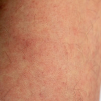Outbreak of measles in Dublin affecting young workers in city centre