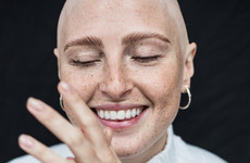 'At first I didn't want anyone to know': Model Amber Jean Rowan shared her alopecia story - and now she's helping others