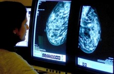 Irish cancer survival rates jump among wealthy nations - but ovarian cancer remains a concern