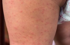 'Losing our measles-free status is a real threat': No drop off in measles rate after cases tripled in 2018