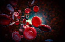 Sepsis linked to 11m deaths worldwide - double what was previously thought