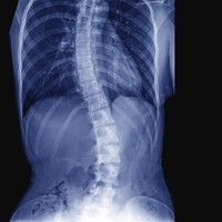 Parents of children affected by scoliosis spinal rod recall to be contacted by surgeons in next 24 hours