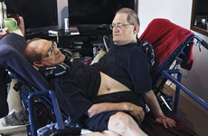 Brother pays tribute after death of world's longest-surviving conjoined twins