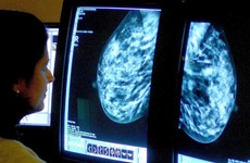 Existing drug could treat 'aggressive' triple-negative breast cancer – study