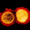 Debunked: Yes, the virus that causes Covid-19 has been isolated and photographed