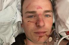 Irish jockey suffers fractured back and broken ribs in bad fall