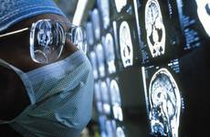 Scientists trial AI-system which could diagnose dementia in one scan