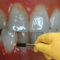 """42 per cent of Irish adults """"are missing teeth"""""""