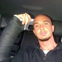 Bad break: Stephen Ireland pictured with arm in a cast