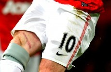 Who wants to see Wayne Rooney's cool scar? (Oh, he says he's fine by the way)