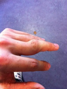 Ouch! Wales captain Sam Warburton dislocates finger, tweets graphic pic