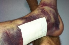 Player shows just how much damage a baseball can do to the human body